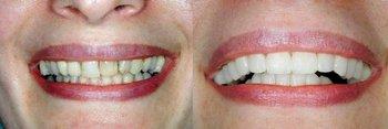 Smile Gallery - Farrell Dental, Lockport Dentist
