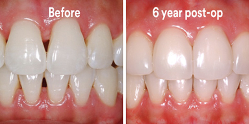 BioClear Diastema Closure and Black Triangle Closure  - Farrell Dental, Lockport Dentist
