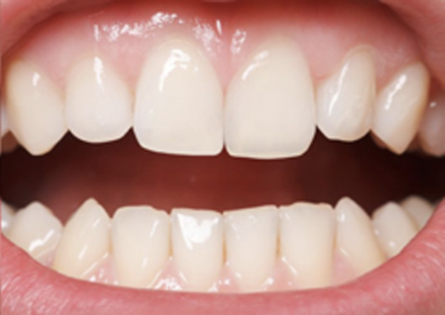 Cosmetic Bonding  - Farrell Dental, Lockport Dentist