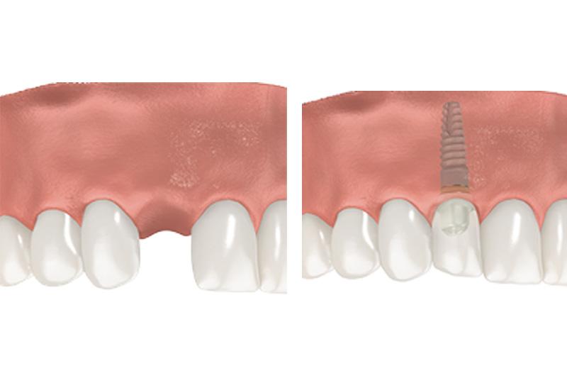 Dental Implants - Farrell Dental, Lockport Dentist