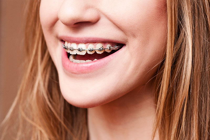 Orthodontics - Farrell Dental, Lockport Dentist