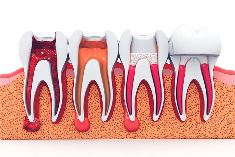 Root Canal Therapy  - Farrell Dental, Lockport Dentist