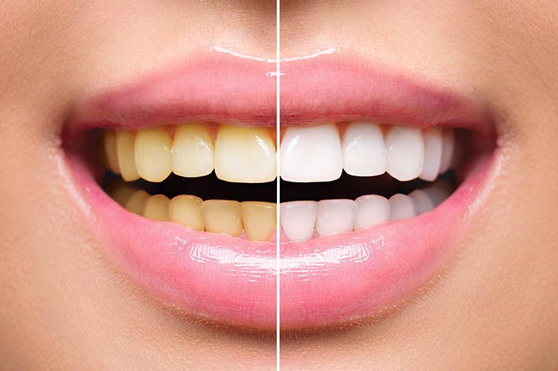 Teeth Whitening - Farrell Dental, Lockport Dentist