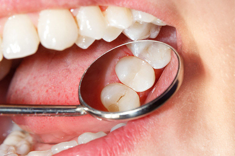 Tooth Colored Composite Fillings  - Farrell Dental, Lockport Dentist