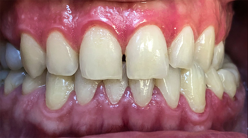 Veneers  - Farrell Dental, Lockport Dentist