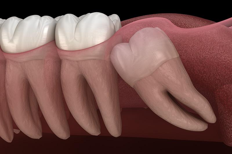 Wisdom Teeth Extractions (with Sedation)  - Farrell Dental, Lockport Dentist